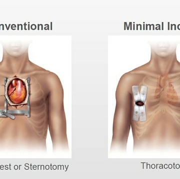Minimally invasive valve surgery improves heart care