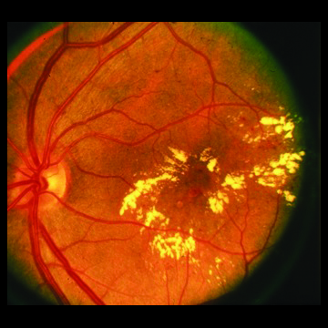 Targeting diabetic blindness