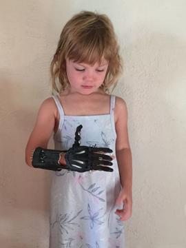 UNM physicians studying 3-D printing of prosthetic hands and fingers