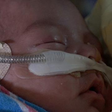 Dylan Waseta, born at over one pound, received donor milk