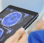Machine Learning Can Bring More Intelligence to Radiology
