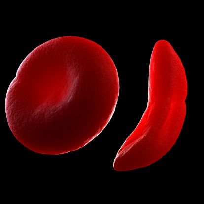 Sickle cell disease: Normal red blood cell (left) and sickled red blood cell (right)