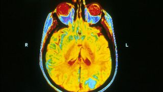 Mayo Clinic Turns to AI to Improve Brain Tumor Treatment