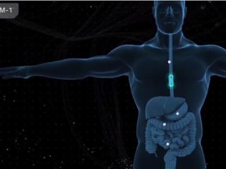20,000 Leagues Into Your Bowels: How GPUs Are Helping to Diagnose Gastrointestinal Anomalies