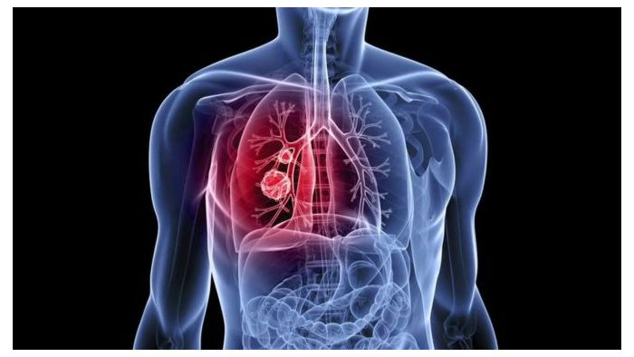 How AI Can Detect Lung Cancer from CT Scans