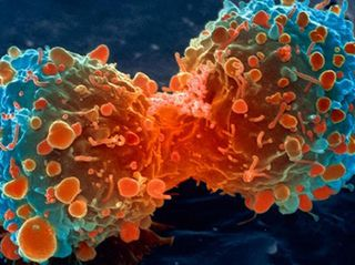 How AI Could Spot Lung Cancer Sooner – and Save Lives