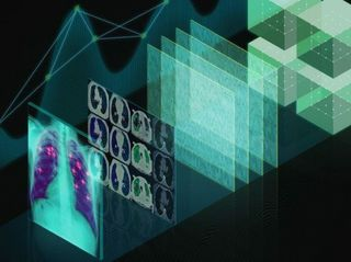 How AI Is Changing Medical Imaging