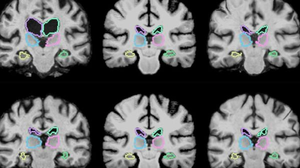 Tumor Tracking: How a Neural Network Compares Brain MRIs in a Flash