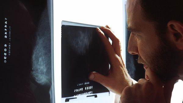 MIT Deploys Deep Learning Tool for Analyzing Mammograms