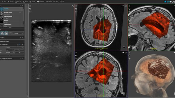 Munich Startup Uses AI to Take Medical Imaging to Another Dimension