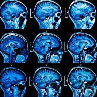 Medical Imaging Startup Uses AI to Classify Conditions from Sinus and Brain Scans