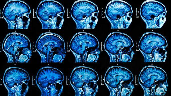 Hi_Res_brain_scans_crop-842x450