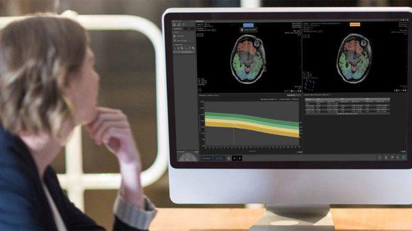 Quantib's Quest: Startup Assists Radiologists in Detecting Dementia