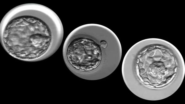 Evening the Odds: Cornell's STORK AI Tool Evaluates Embryo Candidates for Better IVF
