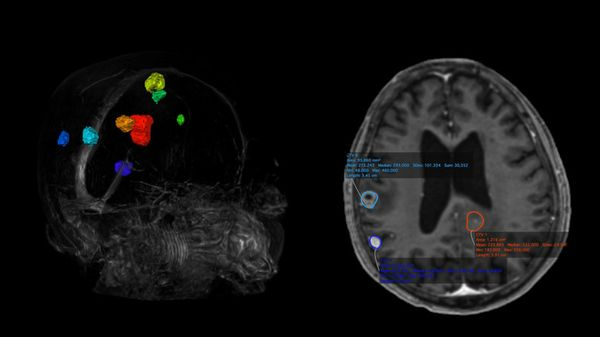 AI Came, AI Saw, AI Conquered: How Vysioneer Improves Precision Radiation Therapy