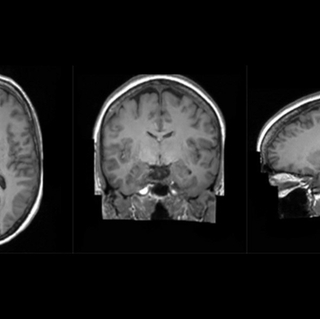 Brain scans performed by King's College London