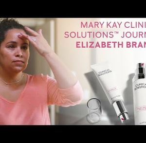 Before and After Mary Kay Clinical Solutions™ | Elizabeth Branco | Mary Kay