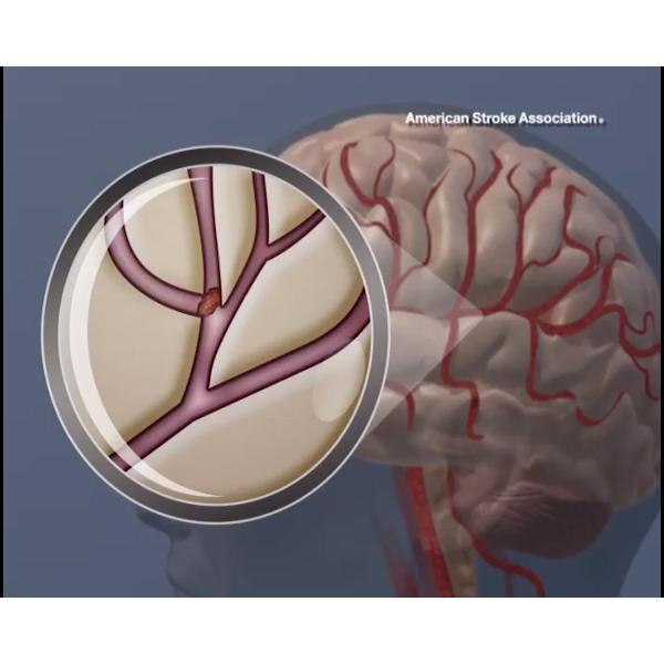 <p>A blood clot in the brain.</p>  <p>copyright American Heart Association&nbsp;</p>