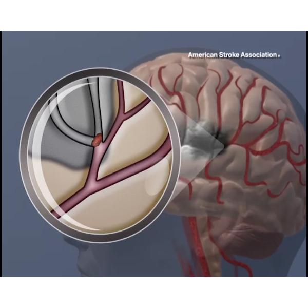 Blood flow blocked in brain