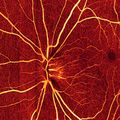 Billions of dollars saved with eye imaging technology co-invented by OHSU physician
