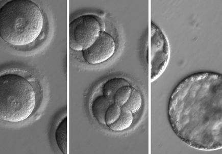 Study in Nature demonstrates method for repairing genes in human embryos that prevents inherited diseases