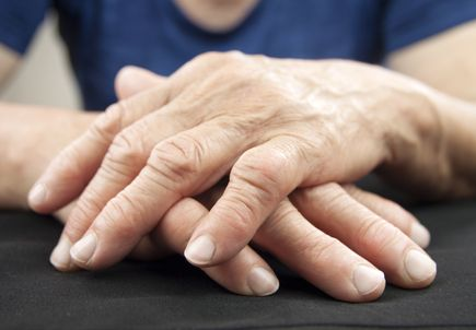 Studies reveal how shingles vaccine should be used in arthritis patients