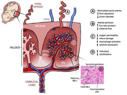 Zika placenta illustration