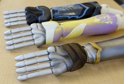 Bionic arm clinical trial