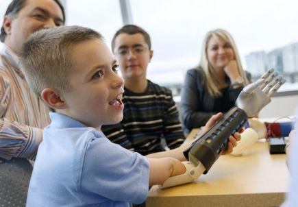 Custom design improves the aesthetic of prosthetic for kids