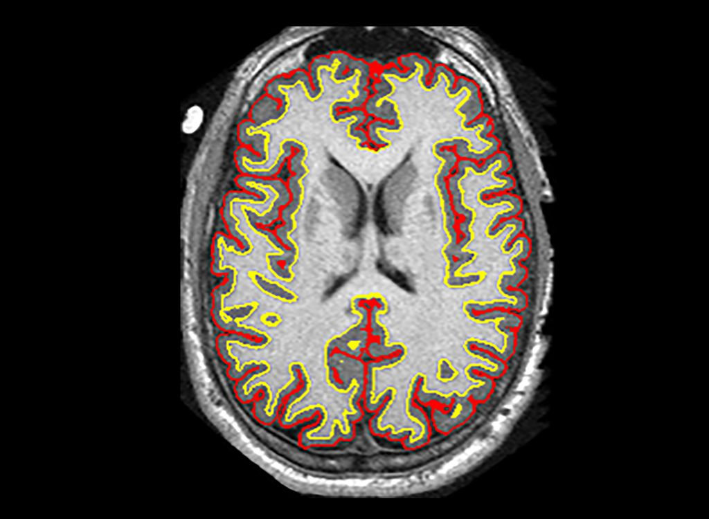 Slowing MS brain shrinkage