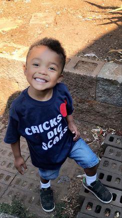 Pediatric congenital heart defect