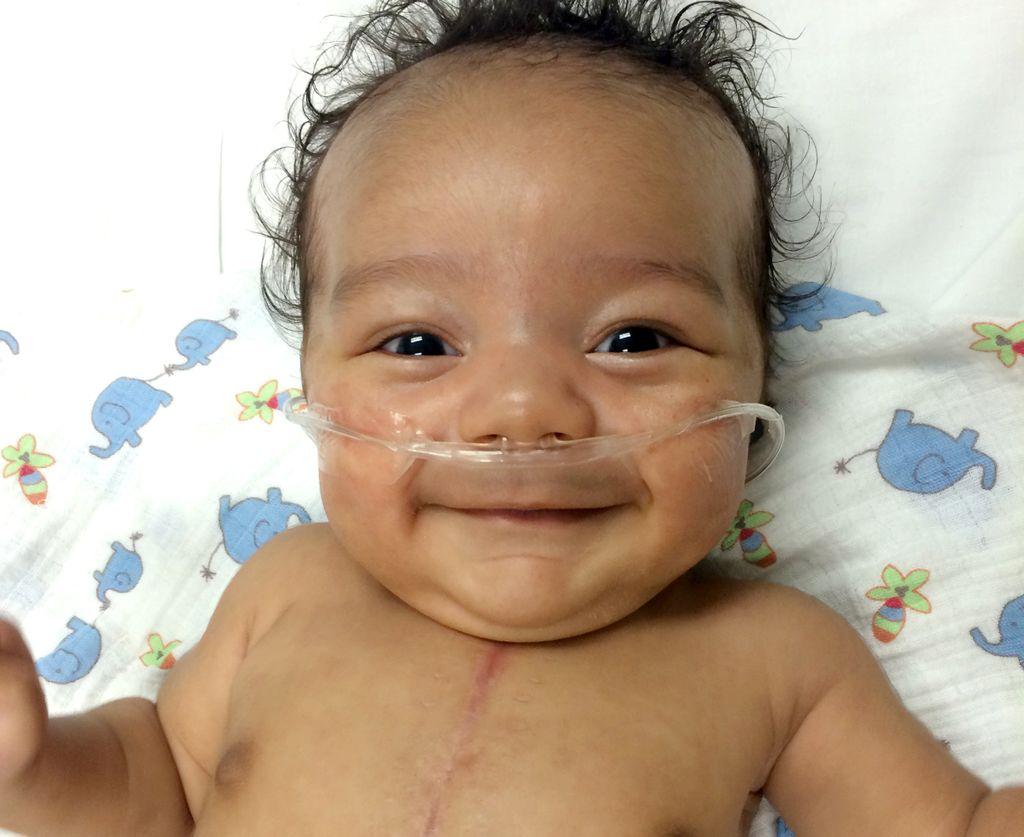 image of smiling baby, with a large scar on chest, and wearing oxygen tube in nose