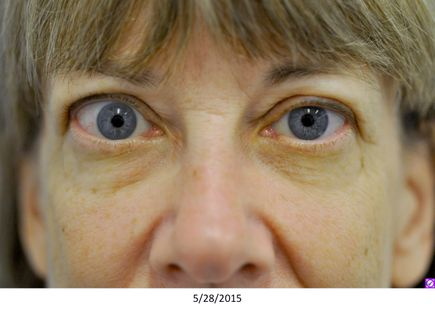 Thyroid eye disease treatment