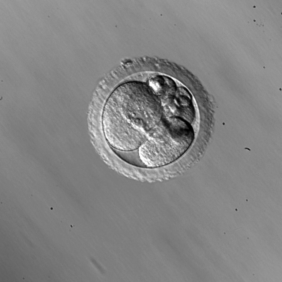 Rhesus embryo cellular fragmentation
