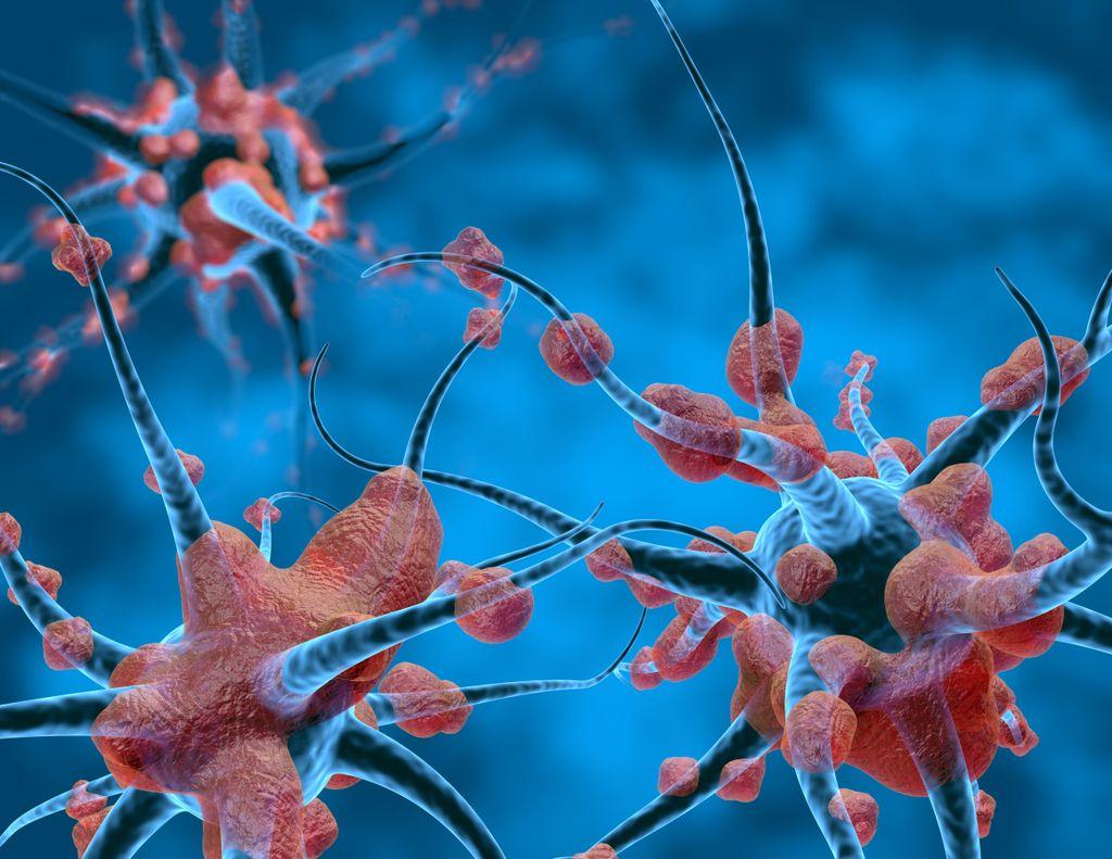 illustration of neurons with damaged myelin sheath