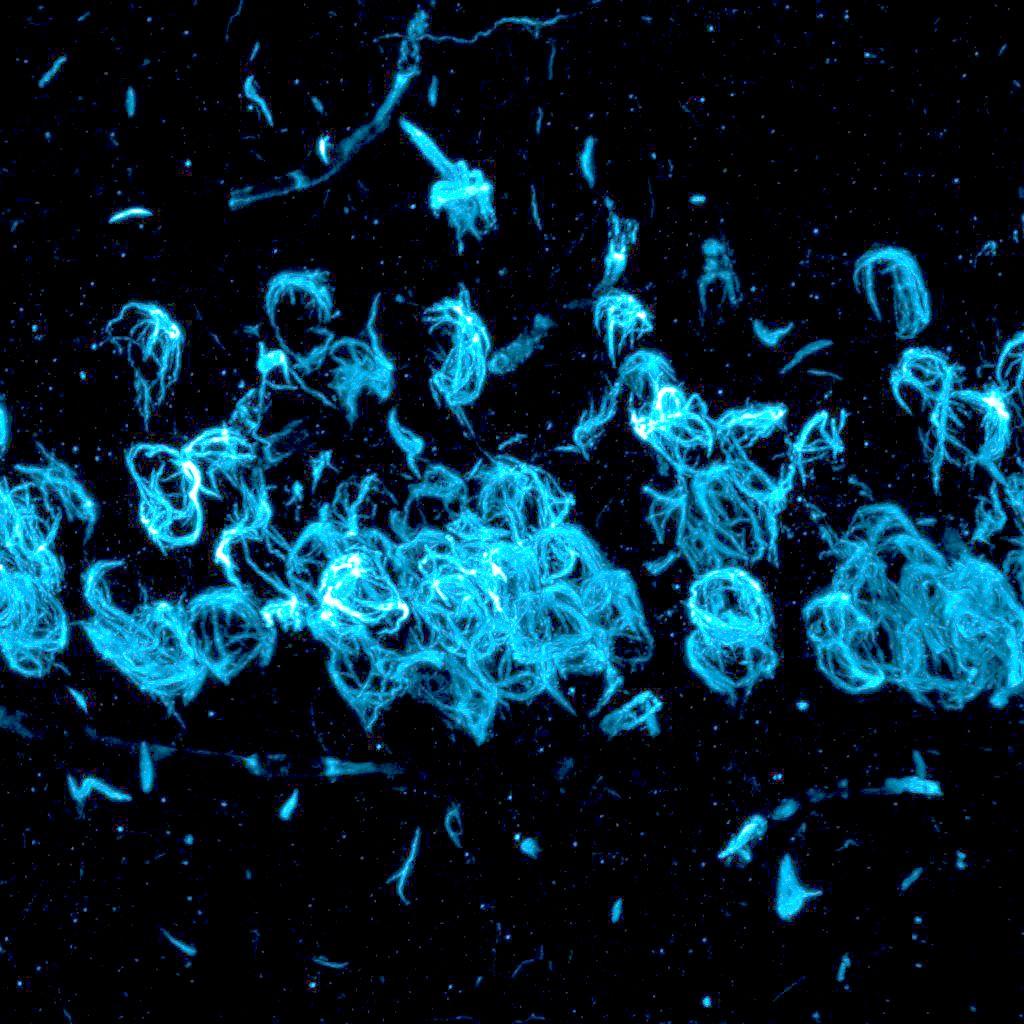 a microscope image showing light blue swirls across a black screen