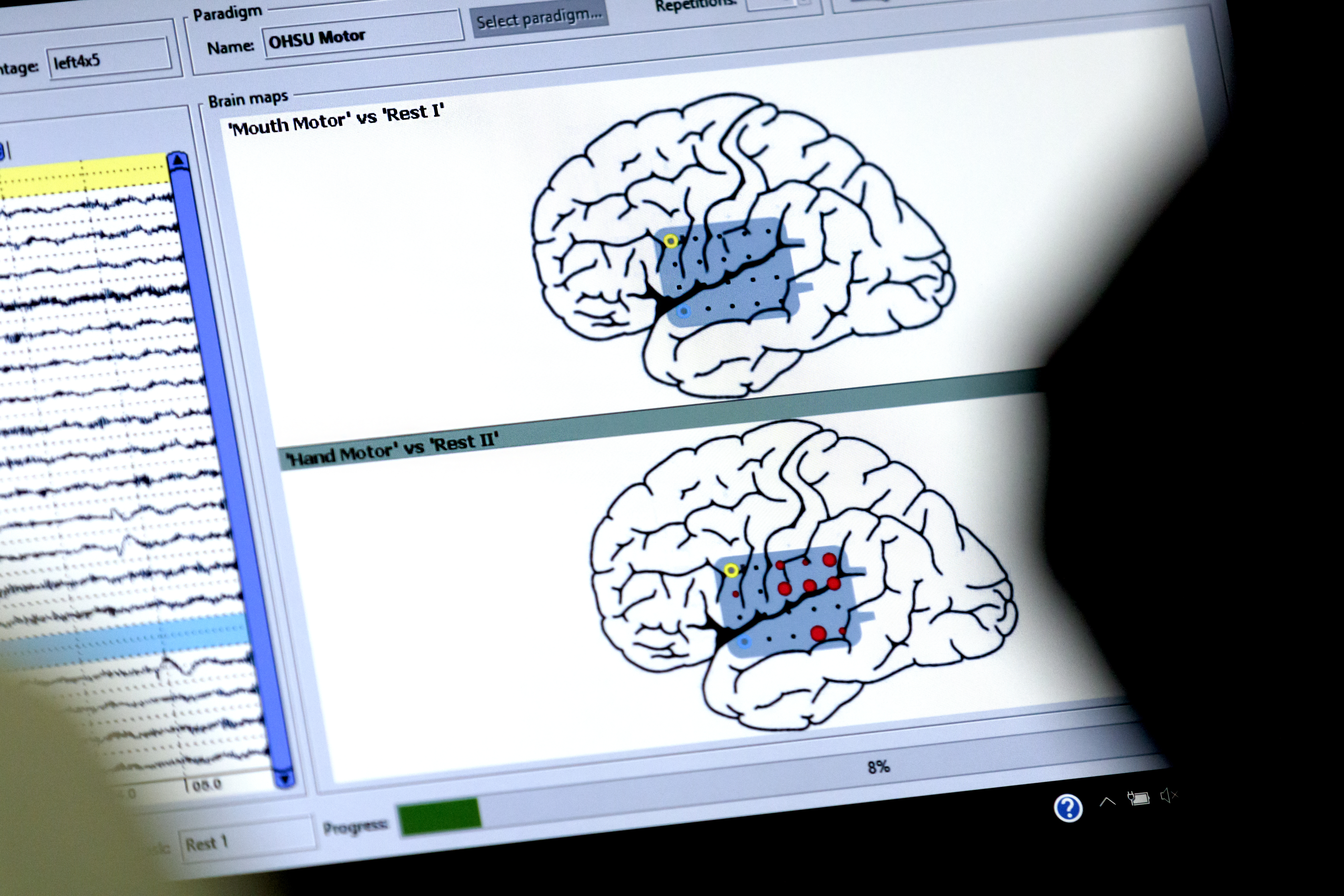 computer screen showing outline of two brains with highlighted areas showing where areas of cognition are