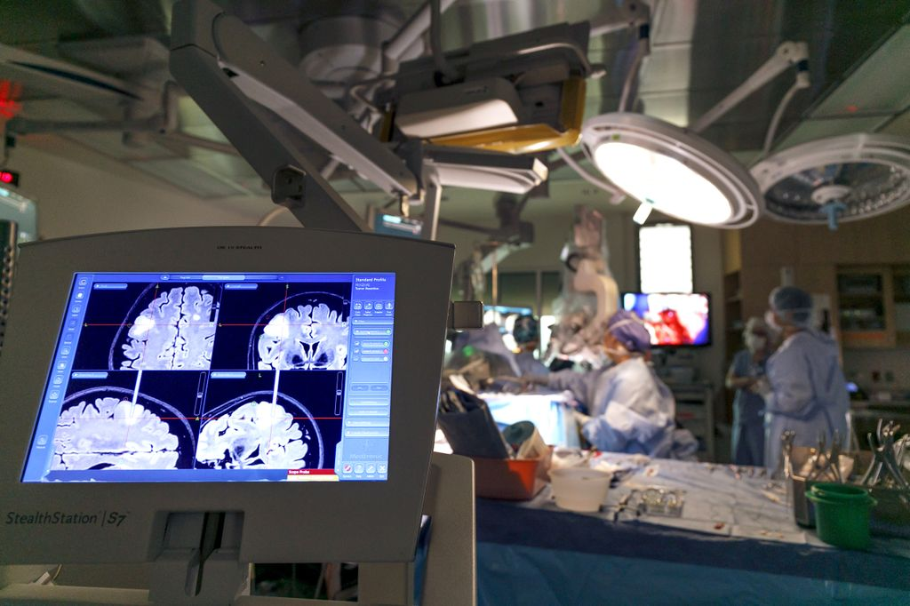 computer monitor shows black/white image of a brain with a tumor on left side of image, with surgery table in background, blurry on right side of the picture