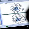 Awake craniotomy with language mapping