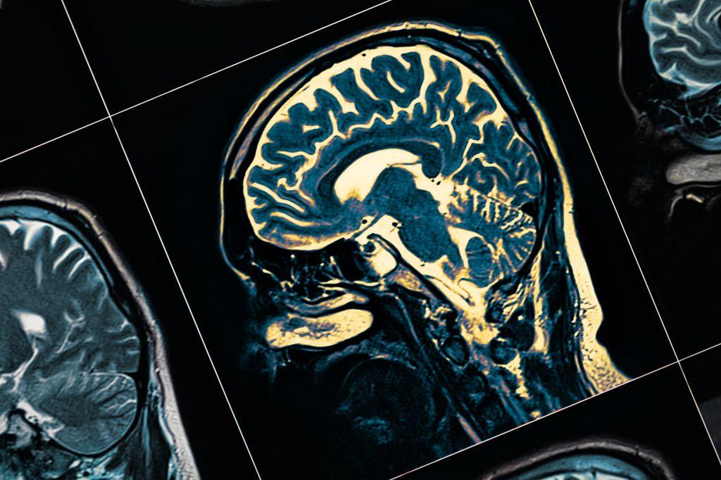 a closeup of a mri of a brain