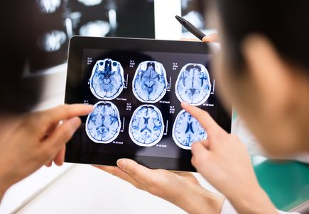 Restructuring of Medicaid reimbursement model reduces imaging, to the benefit of patients