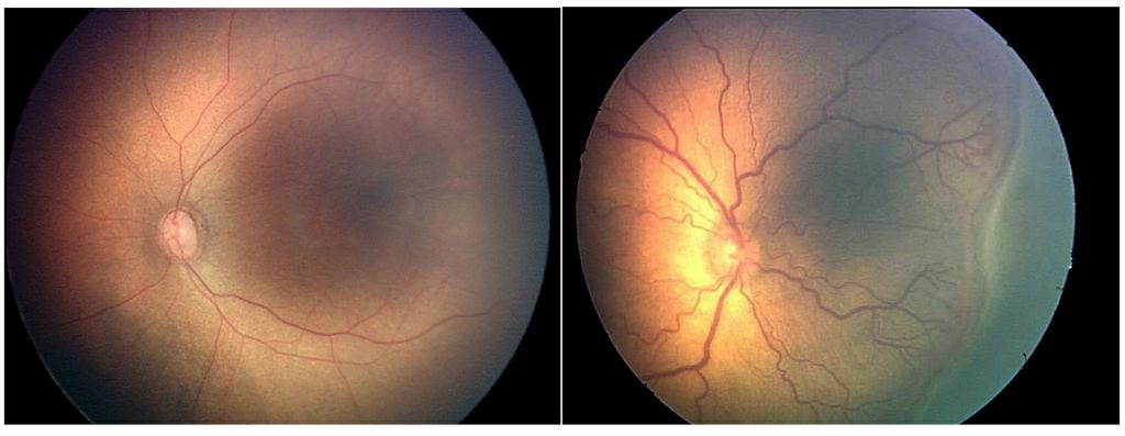 Two close-up images of a human eye, set side-by-side, show two opaque, black-lit orbs that have red vessels growing throughout. The eye image to the right has more pronounced vessels, as would be found for those with the condition retinopathy of prematurity.