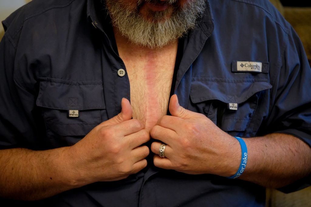 A man opens pulls apart his button-down shirt to reveal a wide scar that runs down the center of his chest.