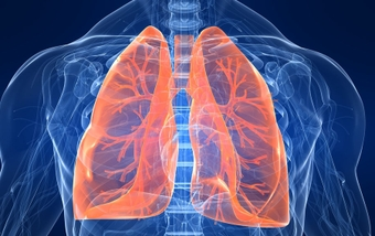 Could it be COPD?