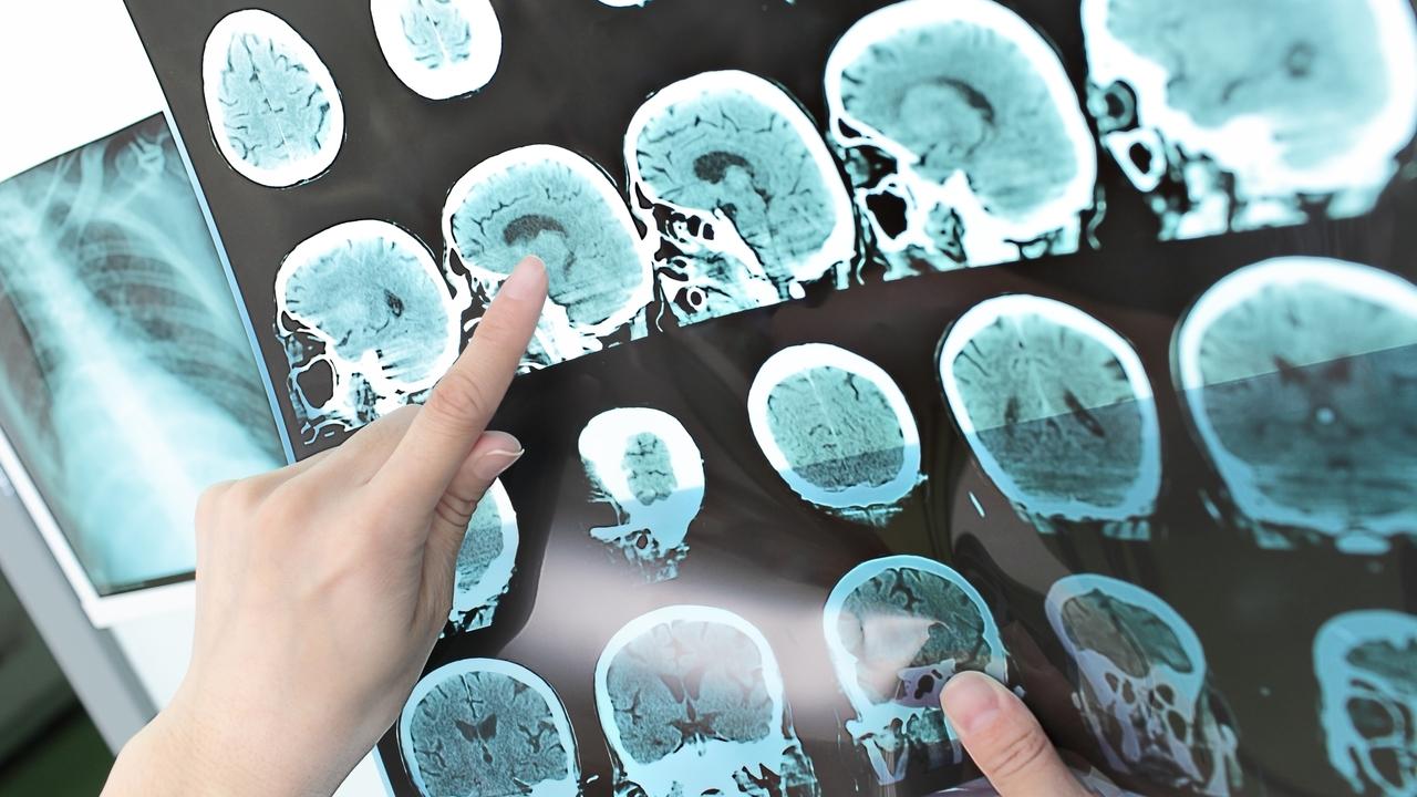 A look into neurosciences at Novant Health