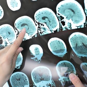 A501~brain scan_16x9