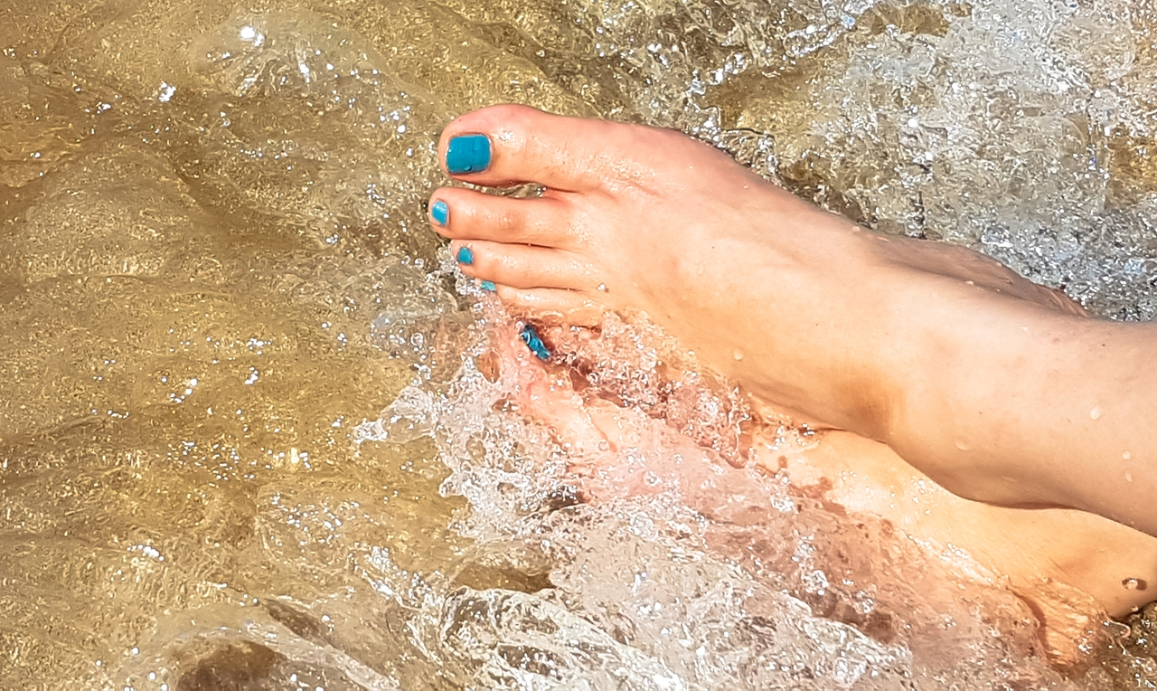 9 things you need to know about treating varicose veins