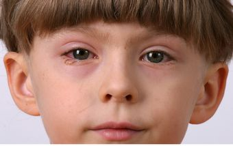 5 things to do when your child gets pink eye