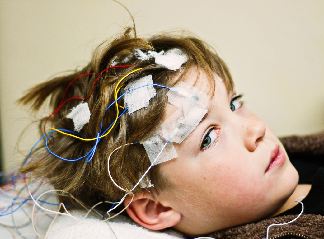 Drug, surgery and implant options for people with epilepsy