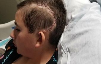 scar on levis head